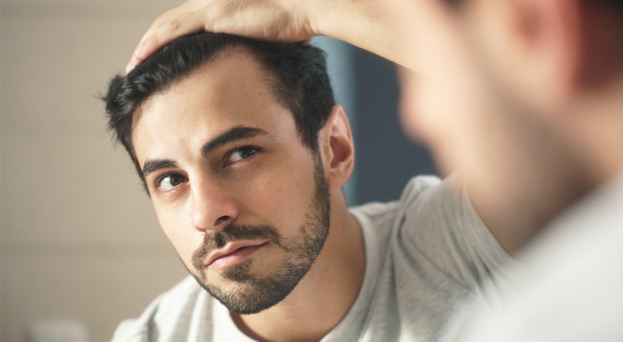 Alopecia herencia