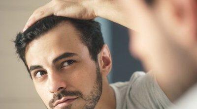 Alopecia: causas, síntomas, tipos y tratamiento