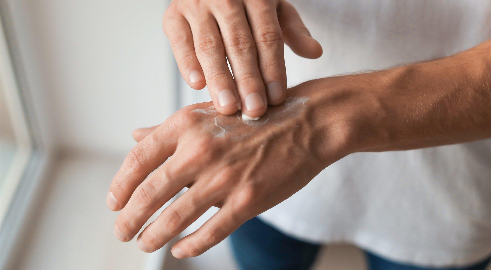 Manos secas, uñas quebradizas, algunos signos que hay que prestarles atención.