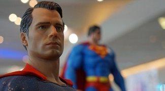 Tener la mandíbula de Superman ya es posible gracias a una operación estética