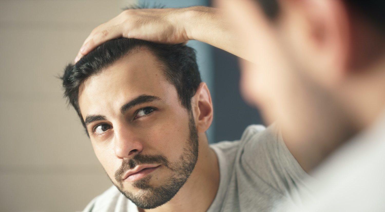 Caspa: cómo tratarla y evitar su aparición