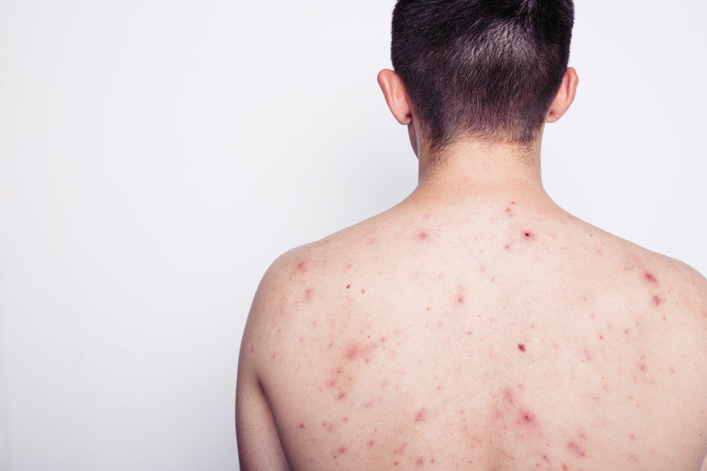 Aunque el acné es característico del rostro, puede propagarse por otras zonas del cuerpo.
