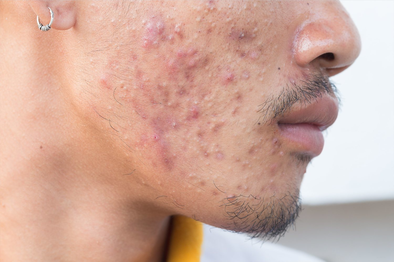 El acné repercute en tu aspecto físico, lo que conlleva en muchos casos la pérdida de confianza en uno mismo.