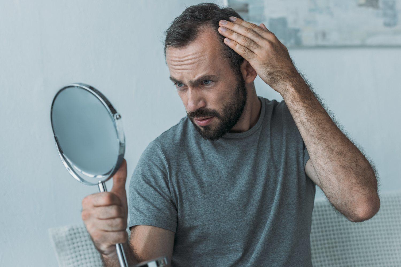 No hay hombre que no esté preocupado por quedarse calvo.