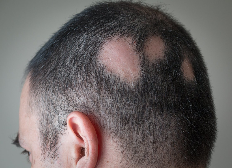 La alopecia areata es de las más complicadas desde el punto de vista estético.