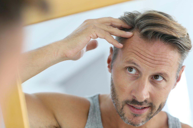 El pelo es una de las parte que más no preocupan con el paso de los años