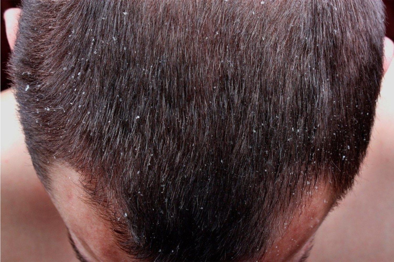 No es grave, pero da un aspecto al pelo de sucio y desaliñado bastante poco agradable