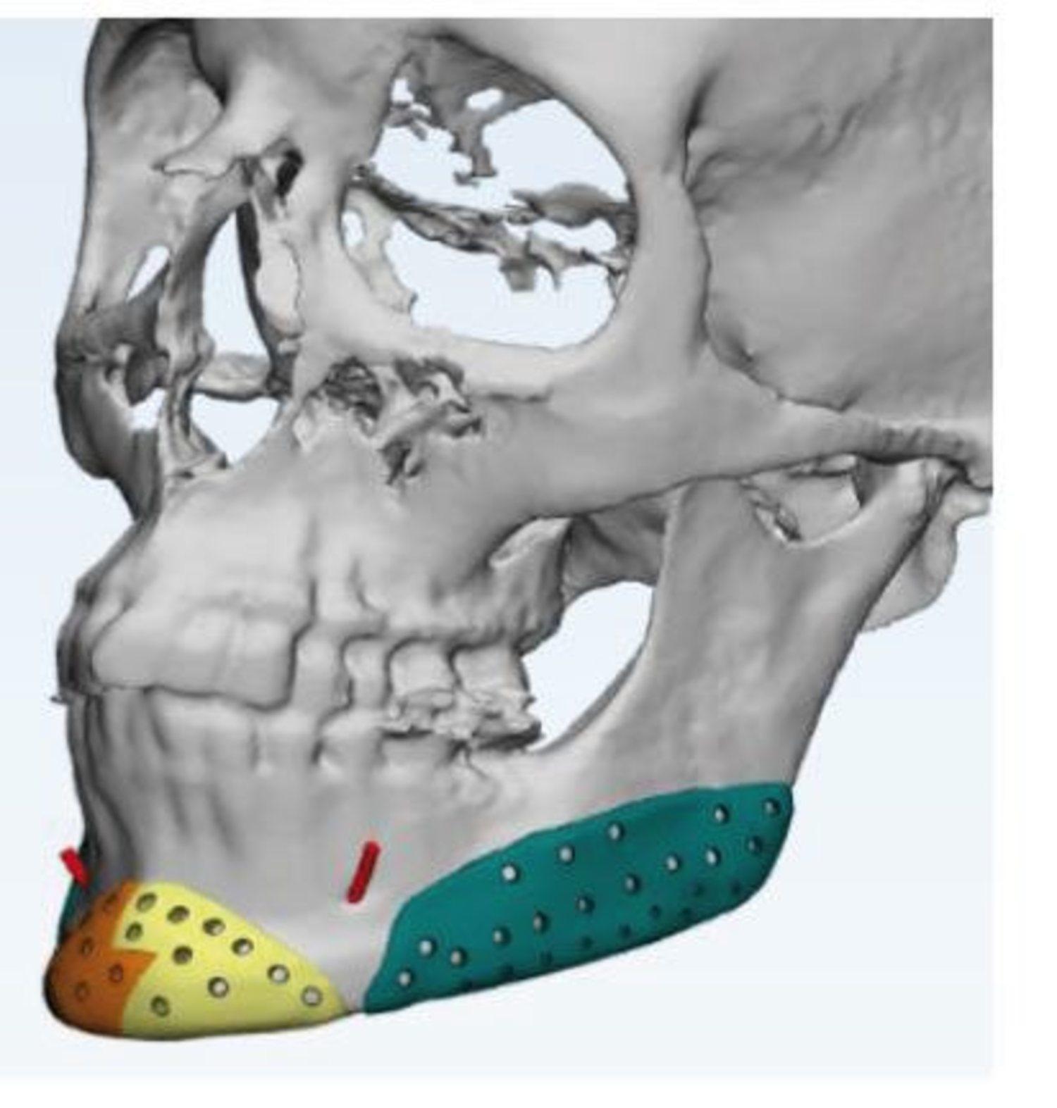 Se usan unas prótesis de titanio para que no causen ninguna reacción en el paciente.